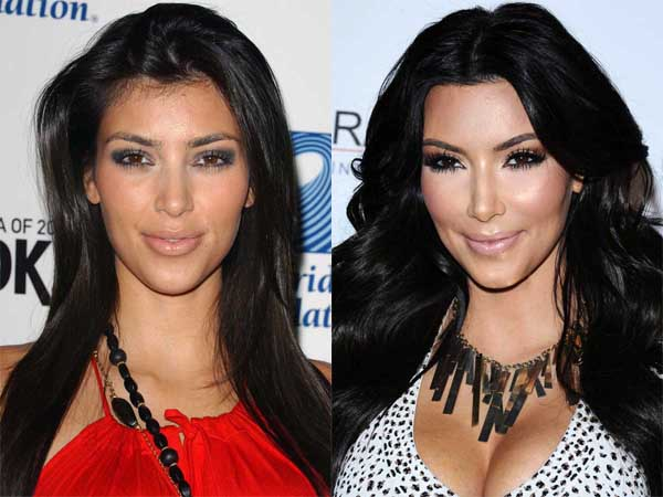 Kim Kardashian Before And After 2015