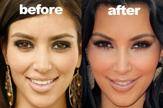 Kim-Kardashian-Before-and-After-Nose-Job