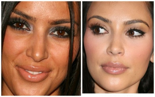 Kim-Kardashian-Nose-Job-Before-and-After