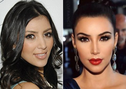 Kim-Kardashian-Nose-Job-Pictures