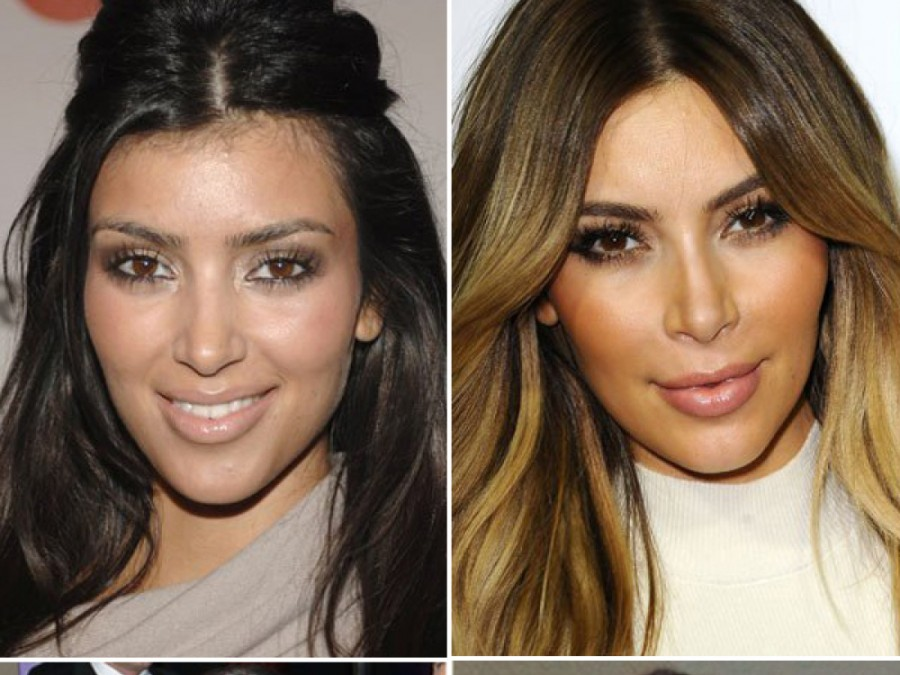 kim kardashian before and after surgery
